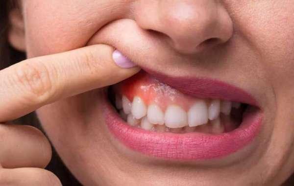 Swollen Gums And Sore Teeth Zip Crack Download Build Pc Full License